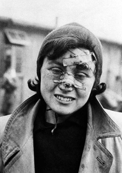Prisoner of the Bergen-Belsen concentration camp, Germany, 29 April 1945 © AP Photo