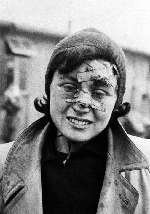 Prisonnière du camp de concentration de Bergen-Belsen, Allemagne, le 29 avril 1945